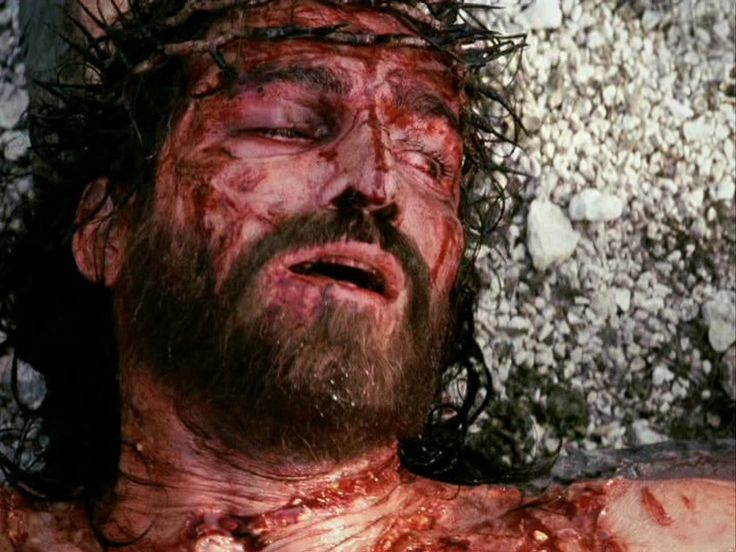 Jesus bled from beard